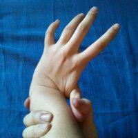 Tratamiento en fisioterapia pediátrica del SED